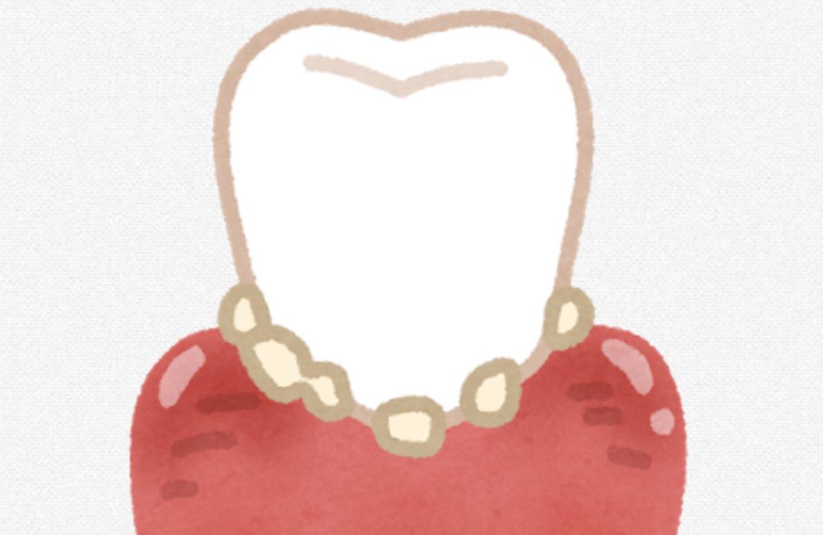 スッキリキレイ 歯石取り動画