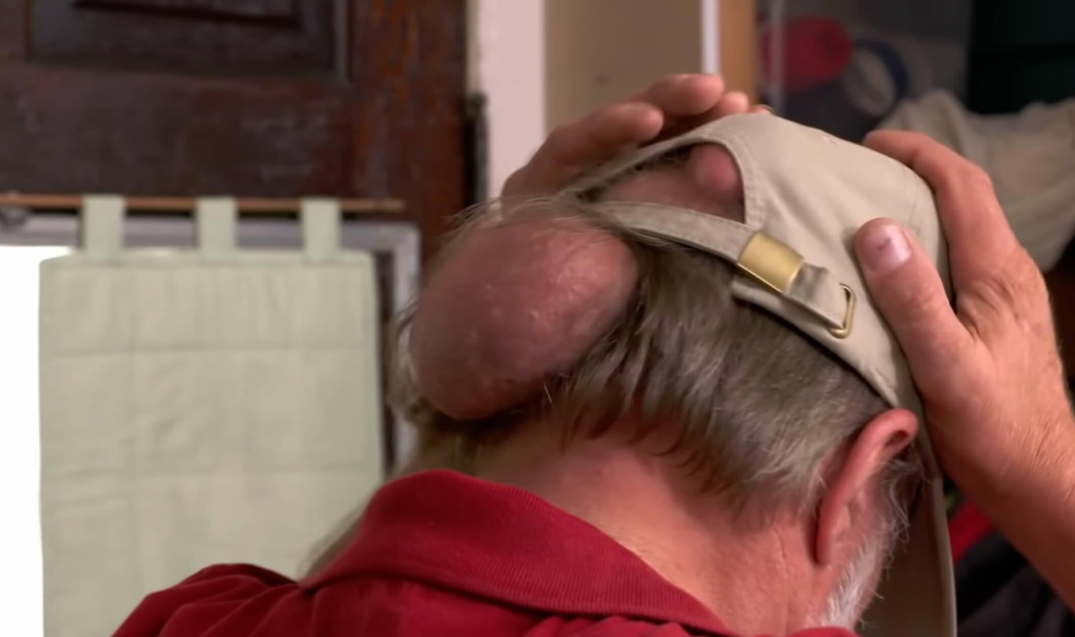 おじいちゃんの後頭部にできた巨大な脂肪腫を取る動画