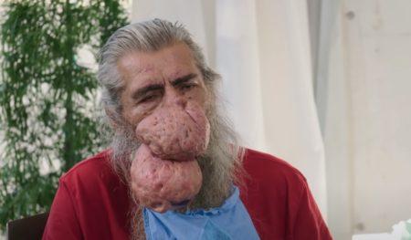 鼻に大きすぎる鼻瘤ができてしまったおじいさん 無事除去成功!